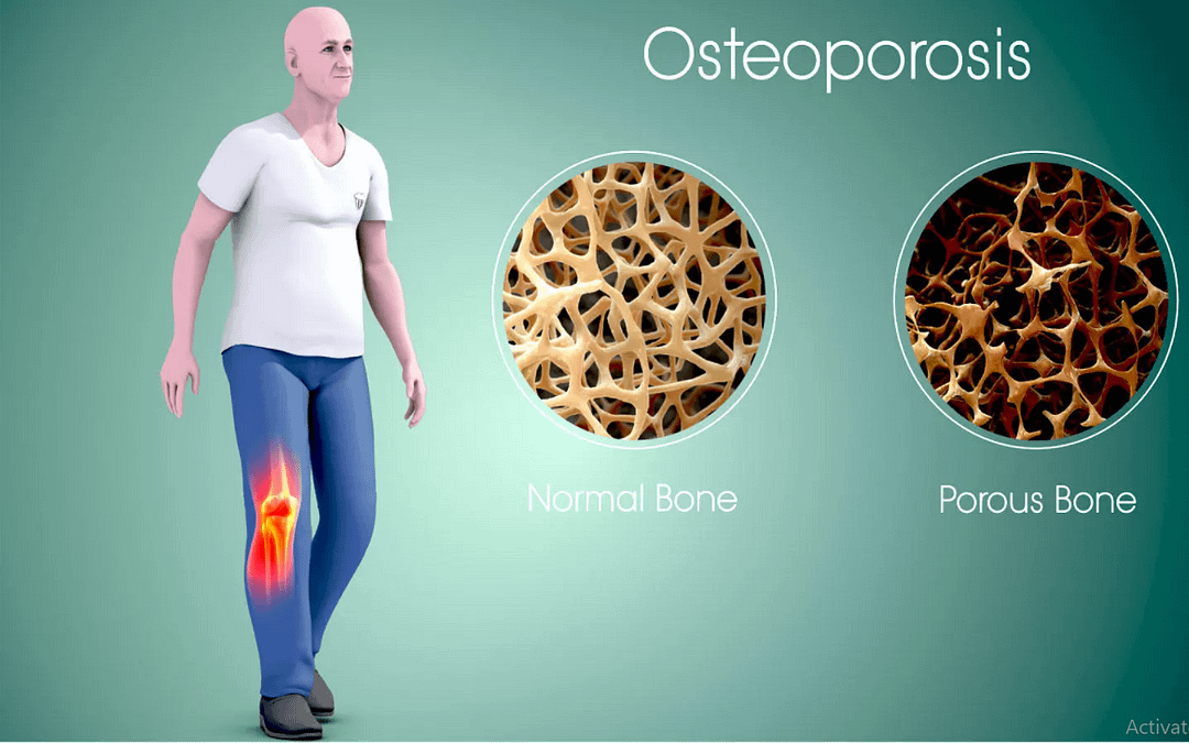 LET'S PREVENT AND REVERSE OSTEOPOROSIS WITH MEDICAL NUTRITON THERAPY